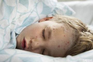 天花是一种什么疾病呢 得天花的症状有什么呢